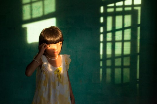A young Vietnamese woman whose mother was exposed to Agent Orange. Photo (c) Ed Kashi/VII Photo